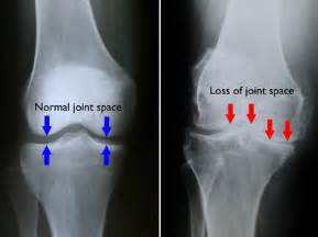 Prominentfor osteoarthritic spurring grade iii osteoarthritic