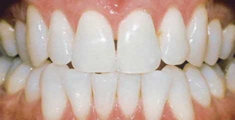 zoom whitening care   teeth