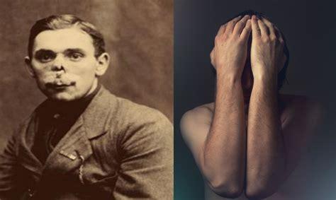 el hombre sin rostro por culpa de una fe insensata el blog del la historia de los hombres sin rostro de la primera guerra