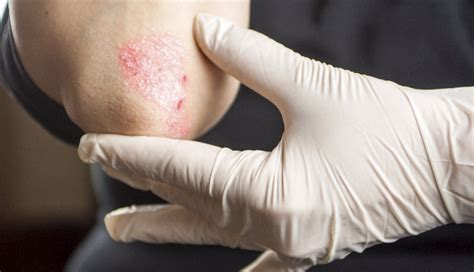 recurring itchy burning rash   patient  beta