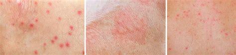 lada dermatologica cl 237 nica dermatol 243 gica en saltillo dermatolog 237 a en general