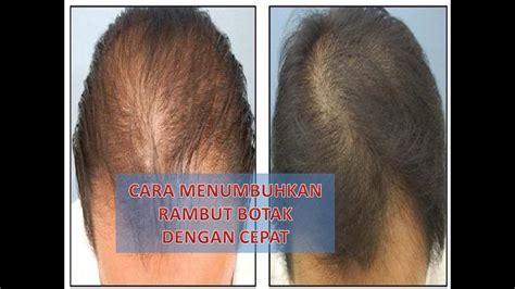 Cara Menumbuhkan Rambut Botak Cara Menumbuhkan Rambut Dengan Cepat cara menumbuhkan rambut botak dengan cepat
