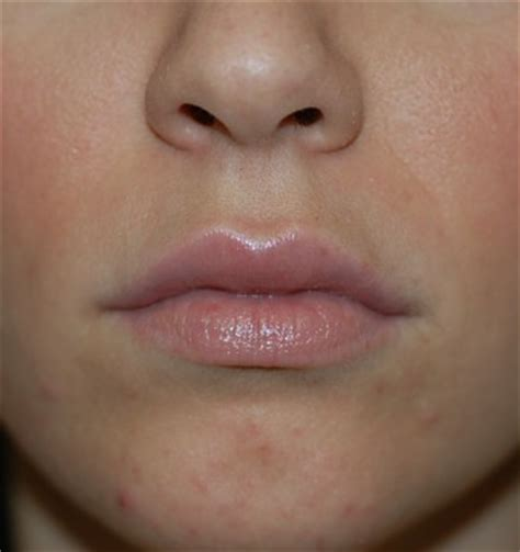 lip augmentation via lip injections are bigger more