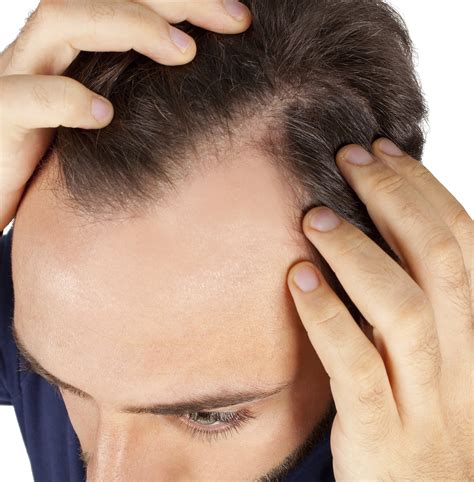 prevent and prolong balding mens health hair toppiks hair regrowth for men and hair loss options