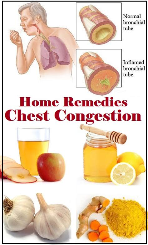 coughs home remedies for chest congestion congestion