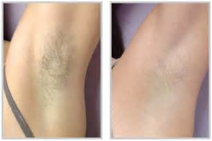 laser hair removal raleigh nc synergy spa raleigh nc