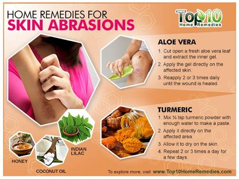 home remedies for skin abrasions top 10 home remedies
