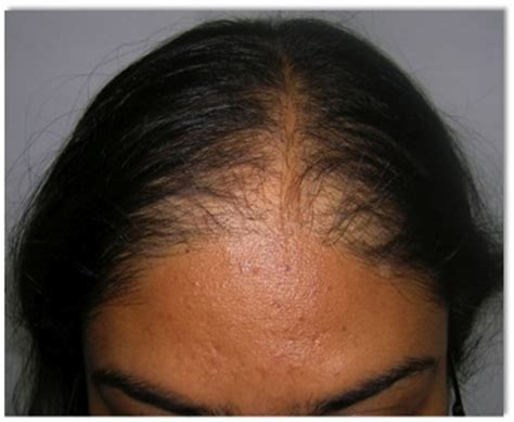 hairstyles for frontal hair loss in women dr bishan mahadevia s hair transplant clinic india