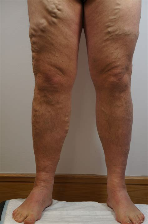 dr john layke spider vein solution how does dr layke treat spider veins ta laser vein