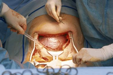 uterus c section journals watch uterine rupture and supplements gponline