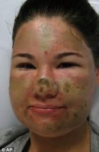 bethany storro: acid attack hoaxer says she was mentally
