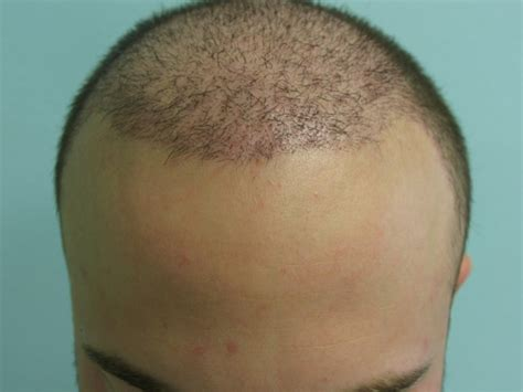 haircut after hairtramsplant ugraft fue hair transplant using 5000 grafts