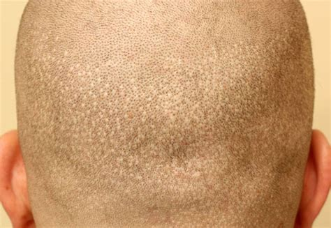 cover scars from hair transplant scalp micropigmentation for fue scars vinci scalp