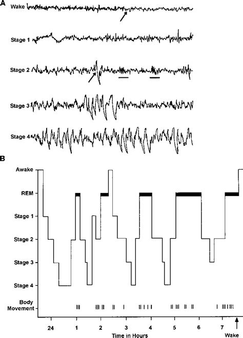 (A) The electroencephalographic (EEG) patterns associated