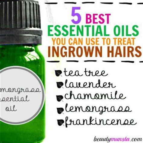 how to stop ingrown stomach hairs 1000 ideas about ingrown hair remedies on pinterest