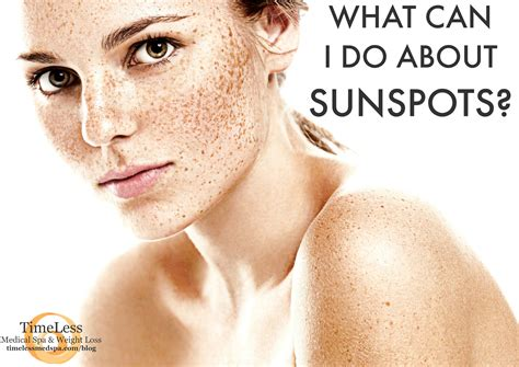 baixar tattoo care tips advice sun exposure tips for new what can i do about sunspots timeless medical spa