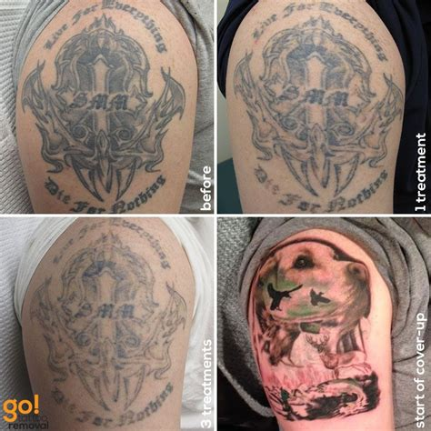 tattoo sleeve removal this client wasn t happy with their half sleeve after