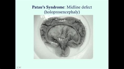 pataus  edwards syndrome medical review series paul bolin medical lectures
