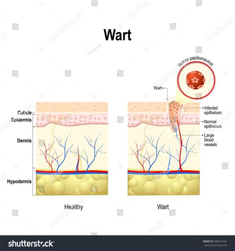 wart cross section wart cross section human skin human stock vector 558231634