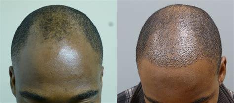 shots in hairline for regrowth in african american men male hair loss in savannah georgia hair restoration savannah