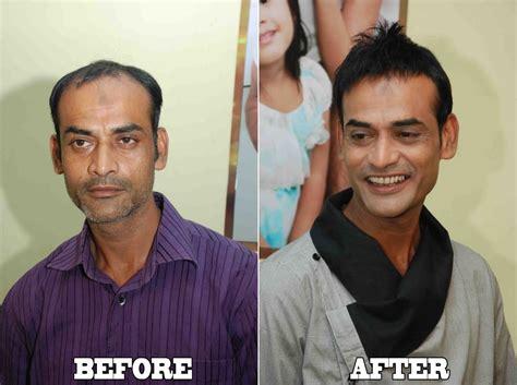salman synthetic hair additional hair transplant shaan khan hair transplant
