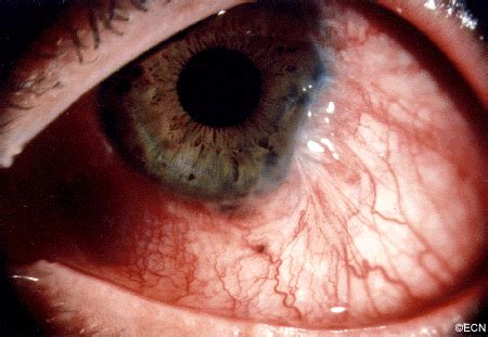 chemotherapy eye drops for malignant conjunctival tumors