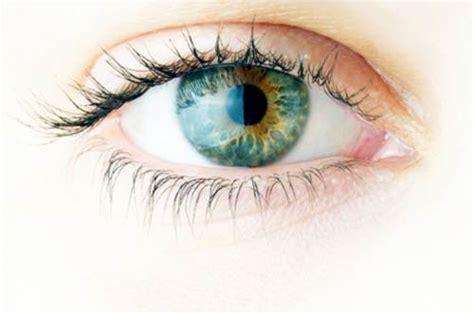 umor vitreo mosche volanti miodesopsie cause sintomi e cura medicinalive