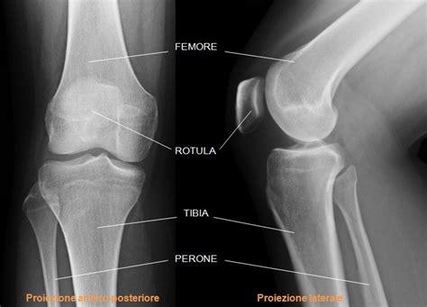 gonfiore interno ginocchio articolazione ginocchio com 232 fatta quali sono le