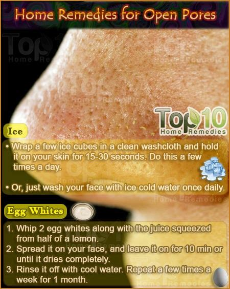 home remedies for open pores top 10 home remedies