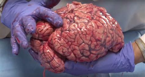 imagenes reales cerebro humano veja v 237 deo da universidade de utah em que as estruturas do