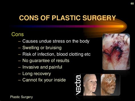 6 Benefits And Risks Of Plastic Surgery by Plastic Surgery