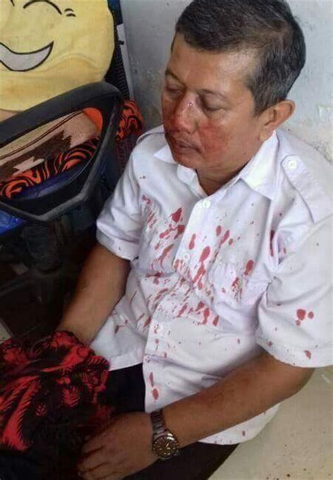 lagi guru dipukuli orang tua siswanya perjuangan berdarah darah seorang guru cara
