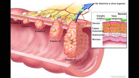 Prevenir cancer de colon causas cancer colon sintomas cancer colon