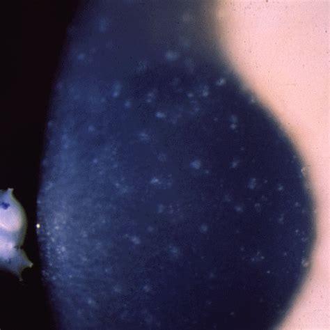 corneal dystrophy corneal dystrophy juvenile epithelial of meesmann