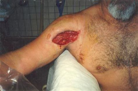 Staph Infection After C Section by 17 Best Images About Strange Diseases On