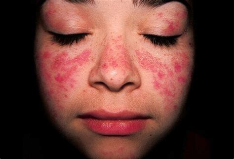 systemic lupus erythematosus sle picture lupus rash