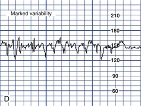 pattern of heart rate variability fetal assessment during labor nurse key
