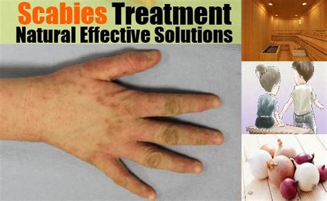 top home treatment for scabies on home remedies for