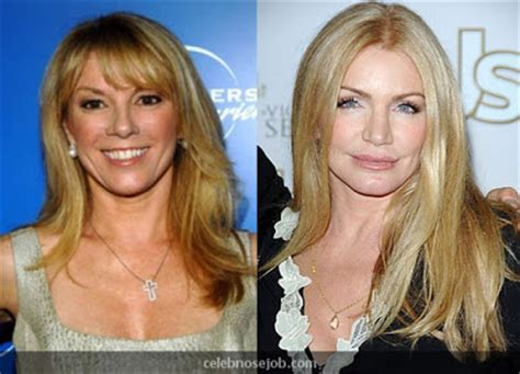 Graphic Footage Of Gene Simmons Plastic Surgery by Shannon Tweed Breast Cacner