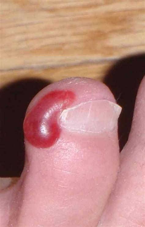 blood blister on blood blister treatment images