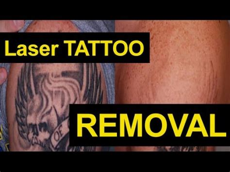 tattoo removal jersey laser tattoo removal before after painless all colors