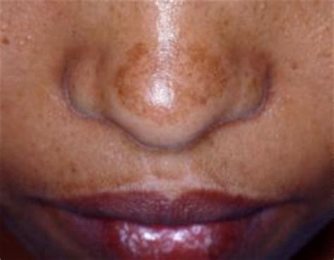 light patches on face how to get rid of black patches on face spots naturally