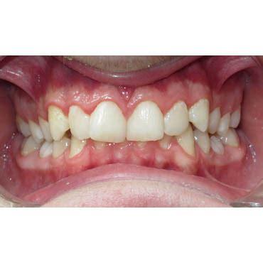 cabinet dentaire bezons supraclusion suivi orthodontique cabinet d orthodontie