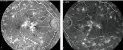 pattern dystrophy fluorescein angiography things aren t as they seem