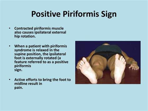 test piriforme piriformis testing related keywords piriformis testing