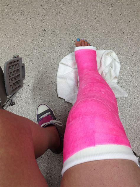 broken leg cast leg images usseek
