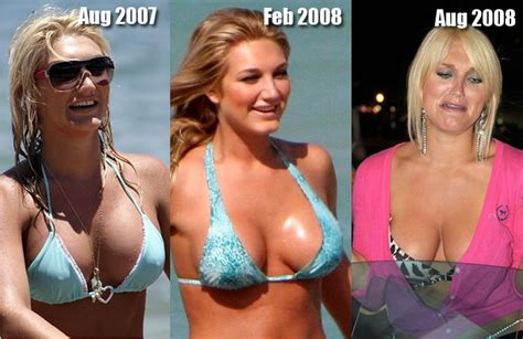 breast implants surgery all about celebrity breast brooke hogan breast implants cosmetic plastic surgery