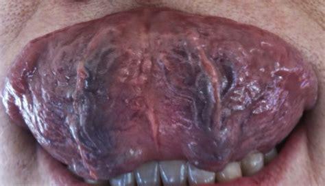 purple tongue maciocia