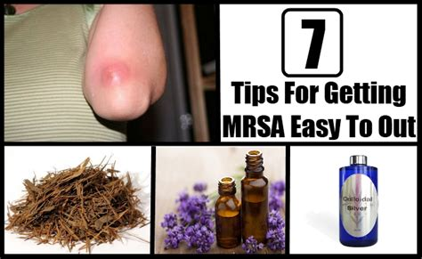 7 cures for mrsa how to cure methicillin