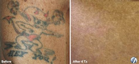 tattoo removal arlington va before and after photos vanish laser clinic alexandria va